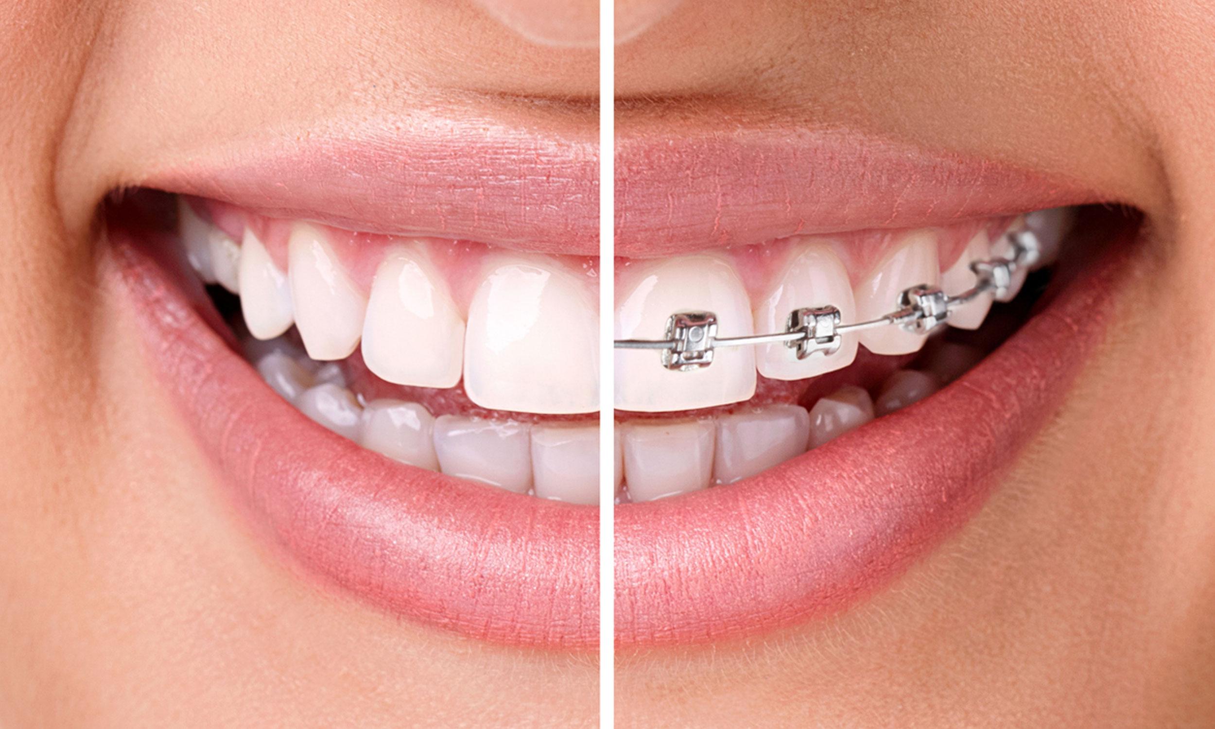 Resultado de imagen para ortodoncia